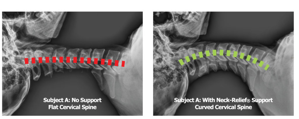 X-Ray comparison - Cervical spine with no neck support vs cervical spine using the Cervipedic Neck-Relief M2 at the highest level of support